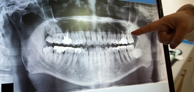 Diş ve Çene Röntgen