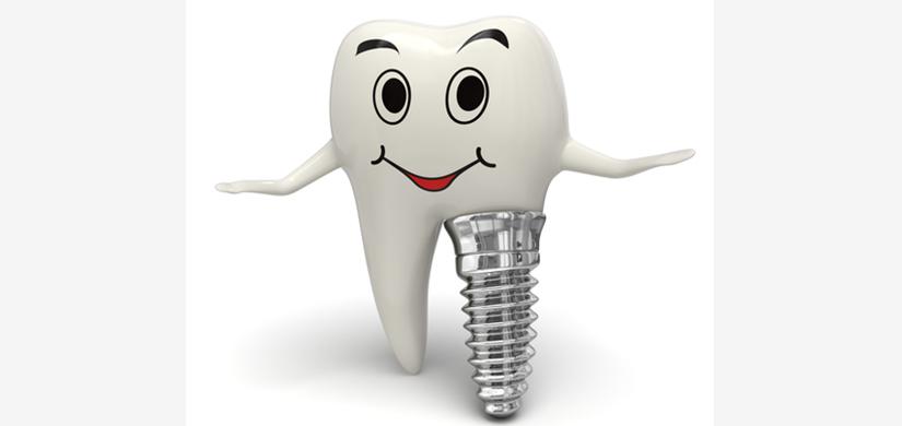 implant-3